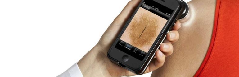 Aplicativos ajudar detectar o câncer de pele