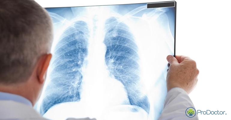 Alertas marcam o Dia Mundial de Combate à Tuberculose