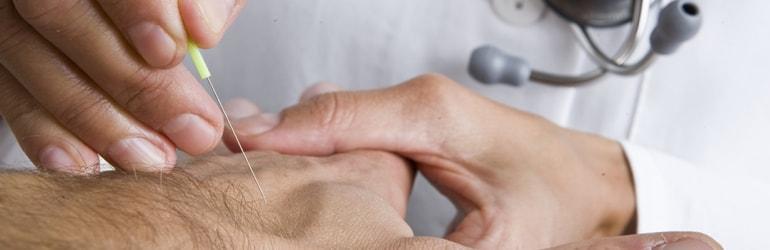 Acupuntura x dores e inflamações