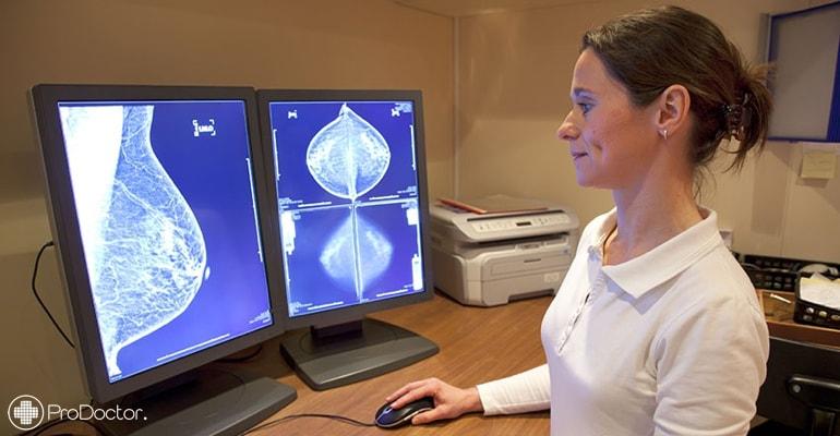 Primeiro Detector Digital para mamógrafo do mundo