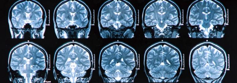 Doenças que desafiam a Medicina - Parkinson