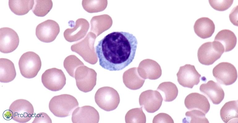 Linfócito, célula que é modificada geneticamente com nova terapia aprovada contra linfoma não Hodgkin