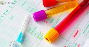 Testes laboratoriais ganham espaço nas farmácias